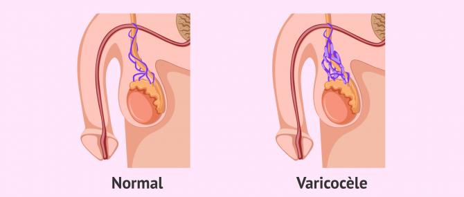 Imagen: Appareil génital avec et sans varicocèle