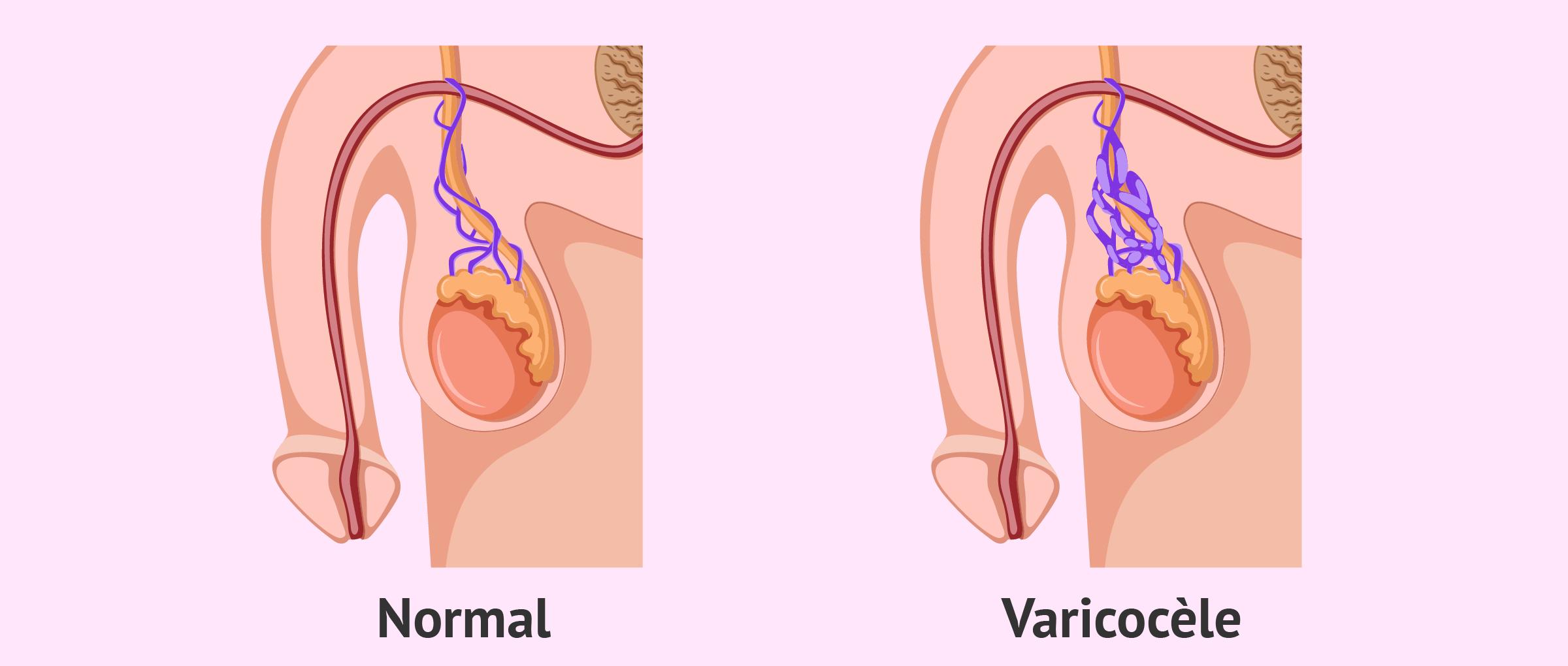 Testicule normal et testicule avec varicocele