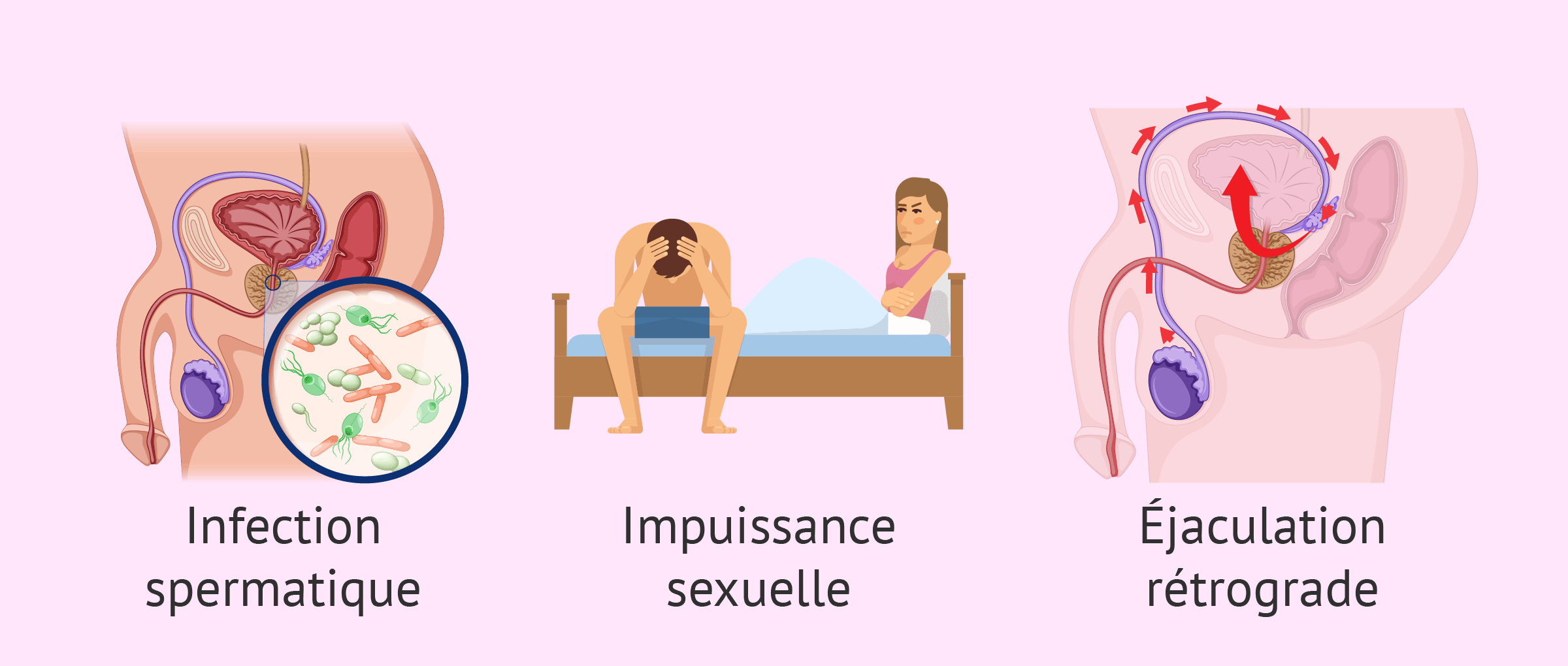 Imagen: Causes de l'infertilité due à un facteur post-testiculaire