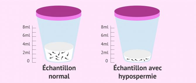 Imagen: Comparaison sperme normal et hypospermie
