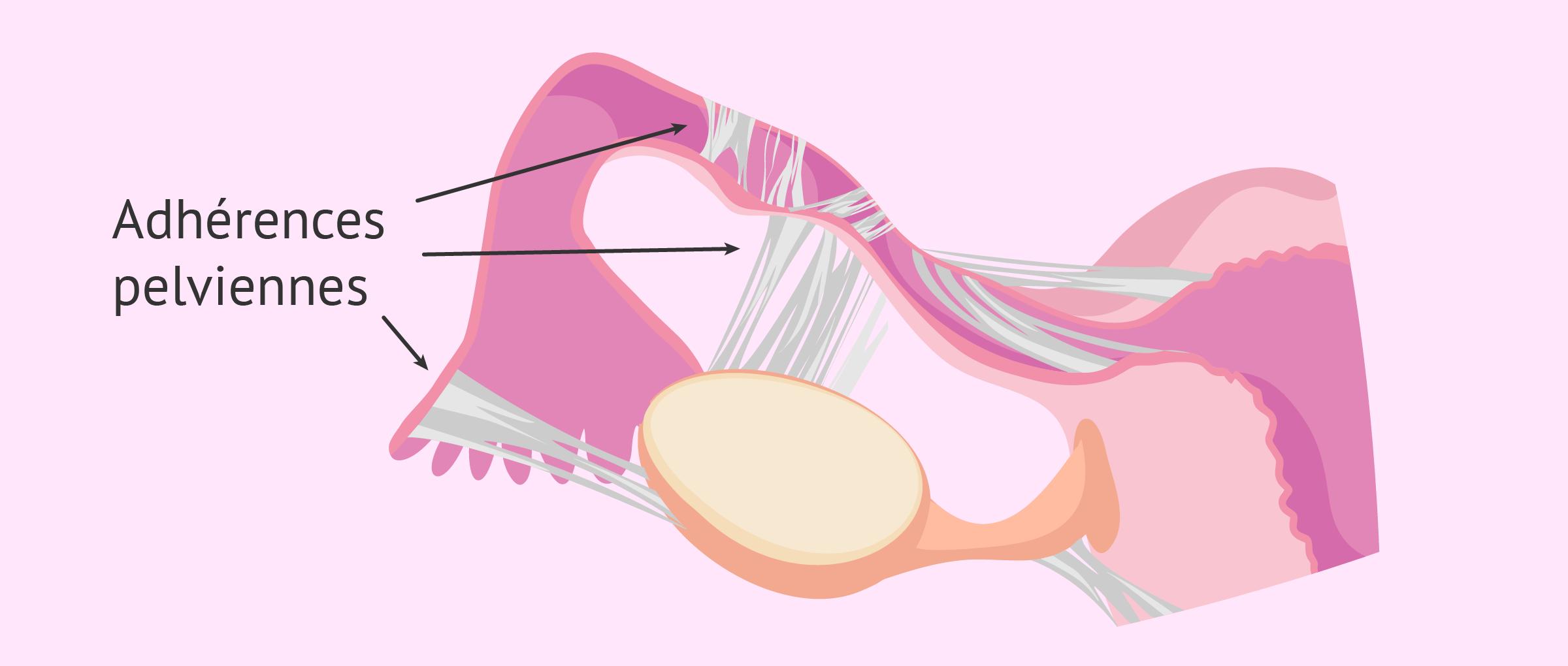 Stérilité tubaire