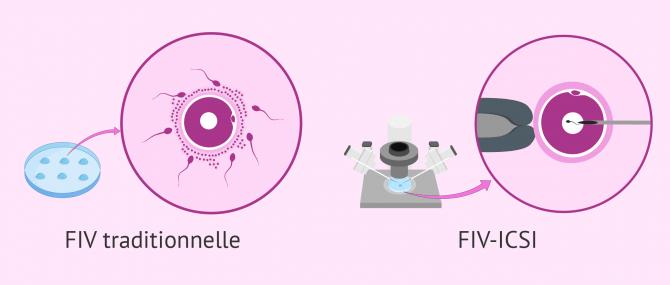 Imagen: Différence entre la FIV et la FIV ICSI
