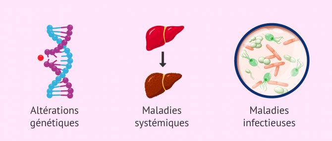 Imagen: Causes de l'hypogonadisme