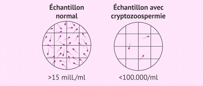 Imagen: Cryptozoospermie
