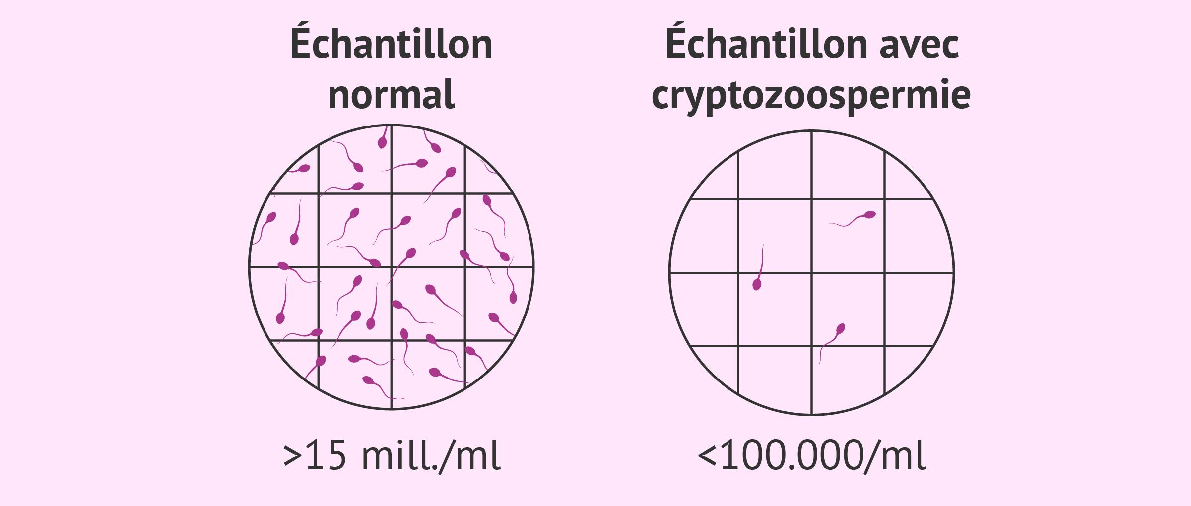Échantillon séminal avec cryptozoospermie