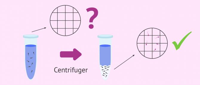Imagen: diagnostic cryptozoospermie