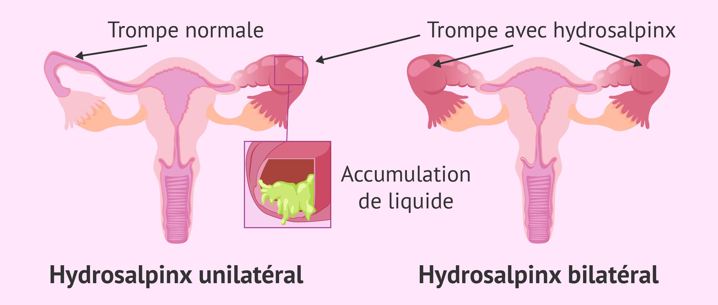 Imagen: Hydrosalpinx unilatéral ou bilatéral