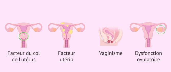 Imagen: indications IA stérilité d'origine féminine
