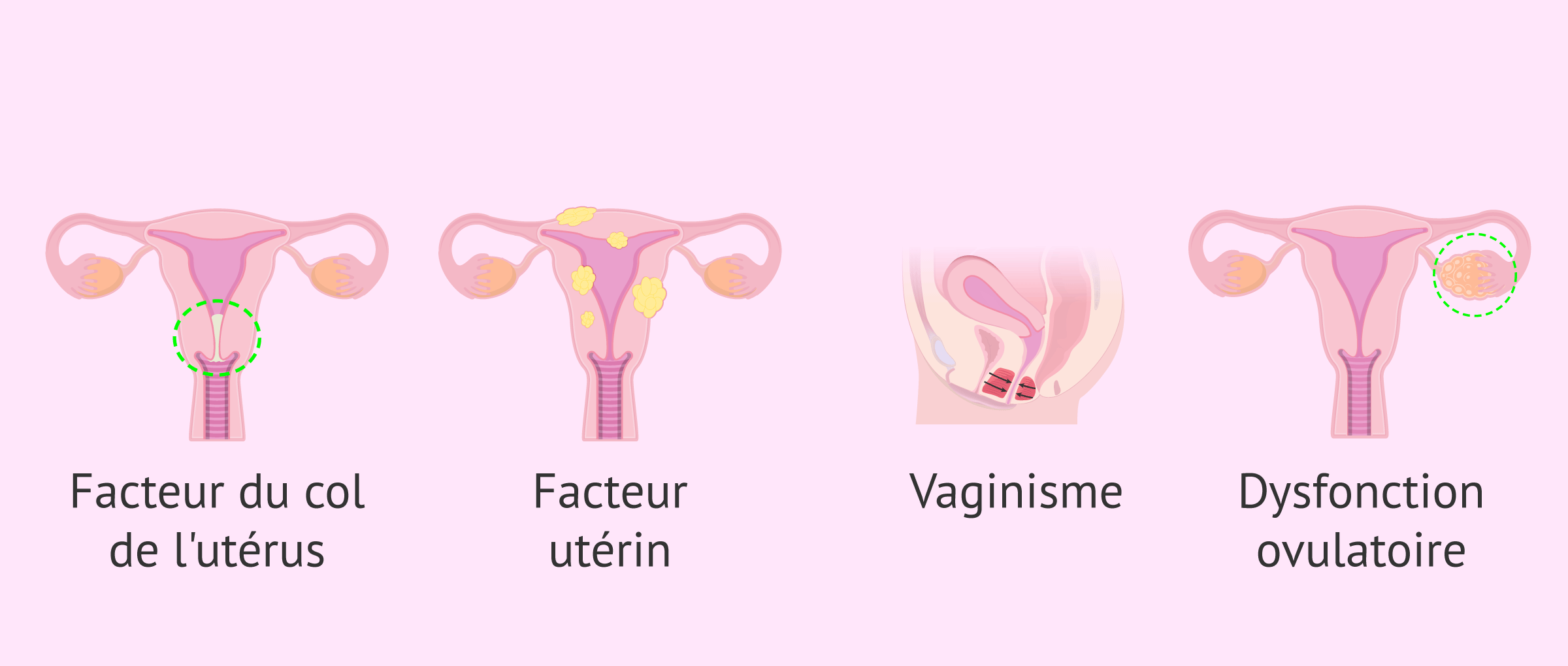 Indications de l'IAC pour la stérilité féminine