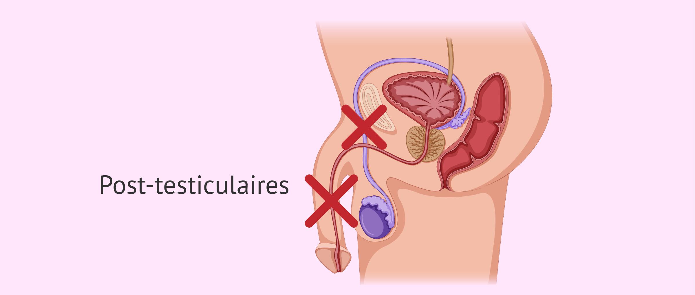 Causes post-testiculaires de l'azoospermie
