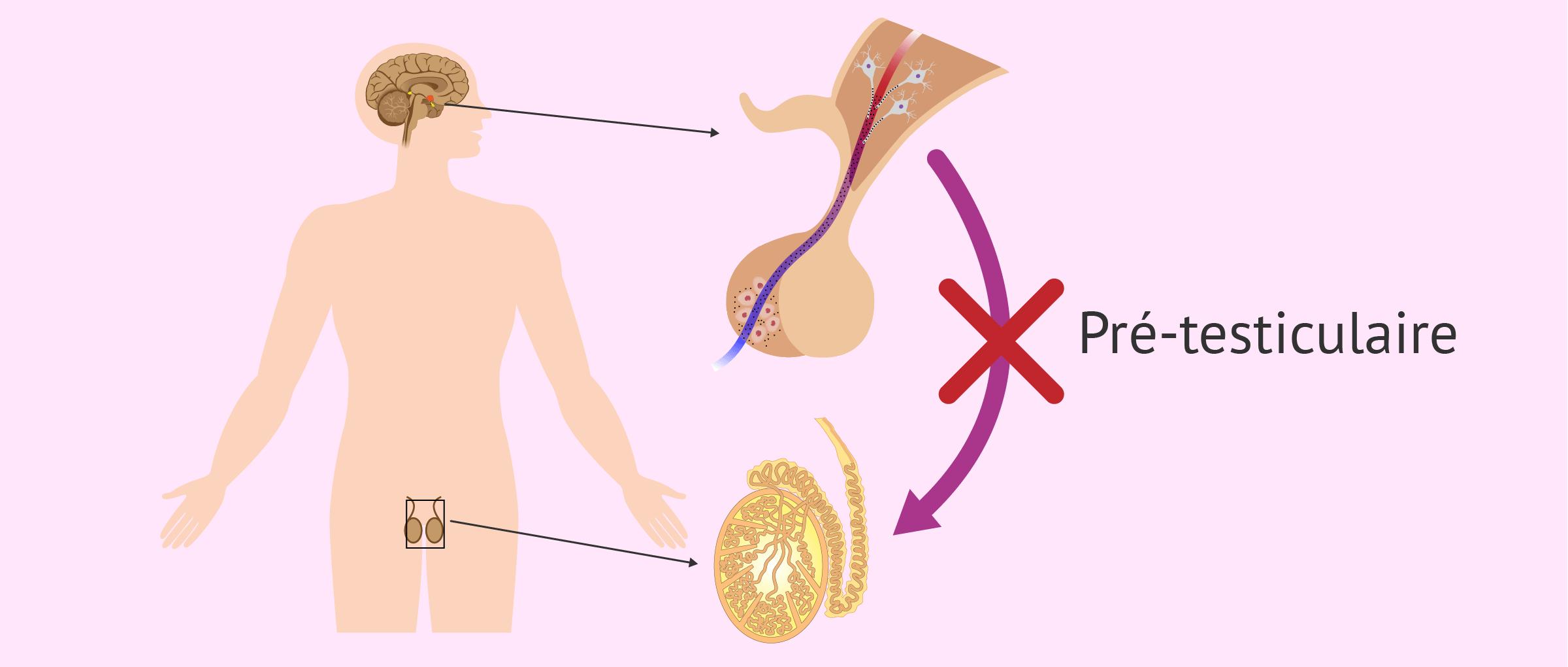 Causes pré-testiculaires de l'azoospermie