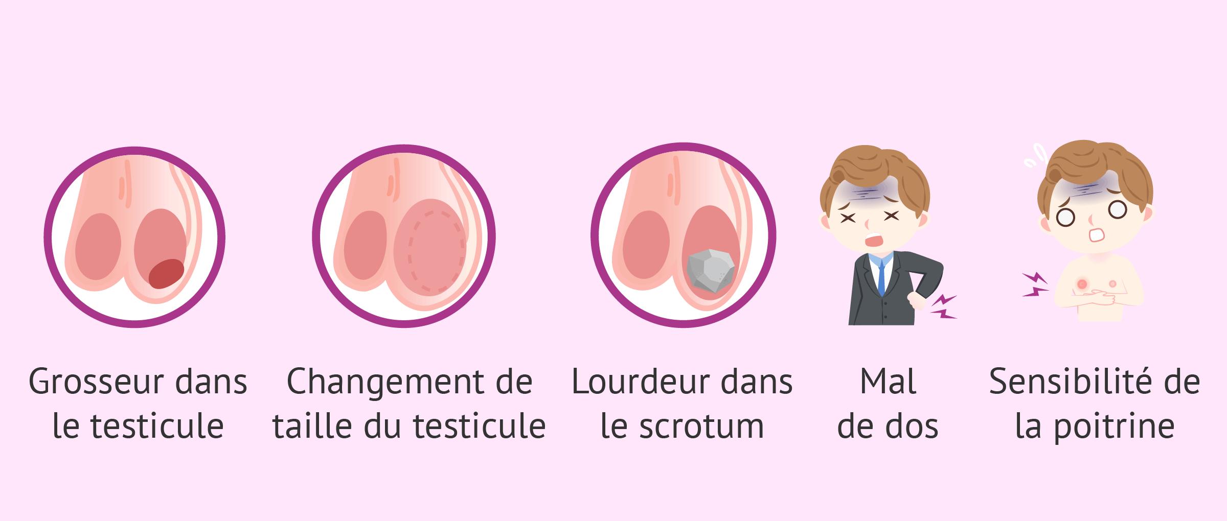 Symptômes du cancer du testicule