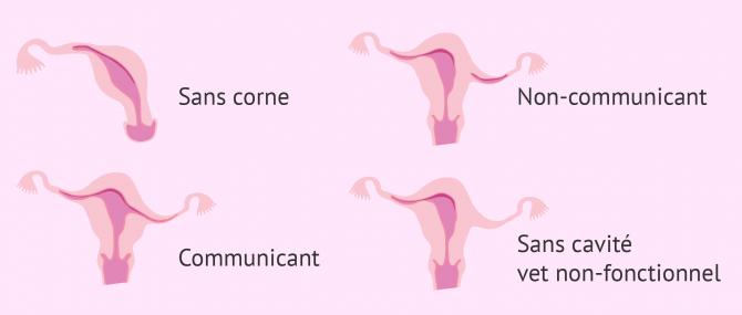 Imagen: Utérus unicorne