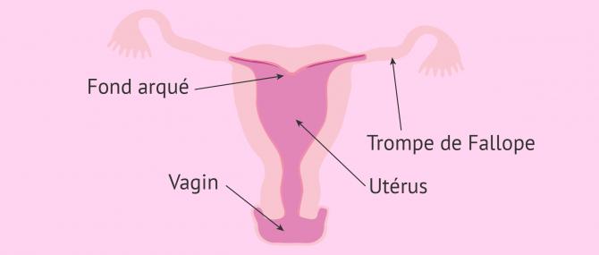 Imagen: Utérus arcuatus