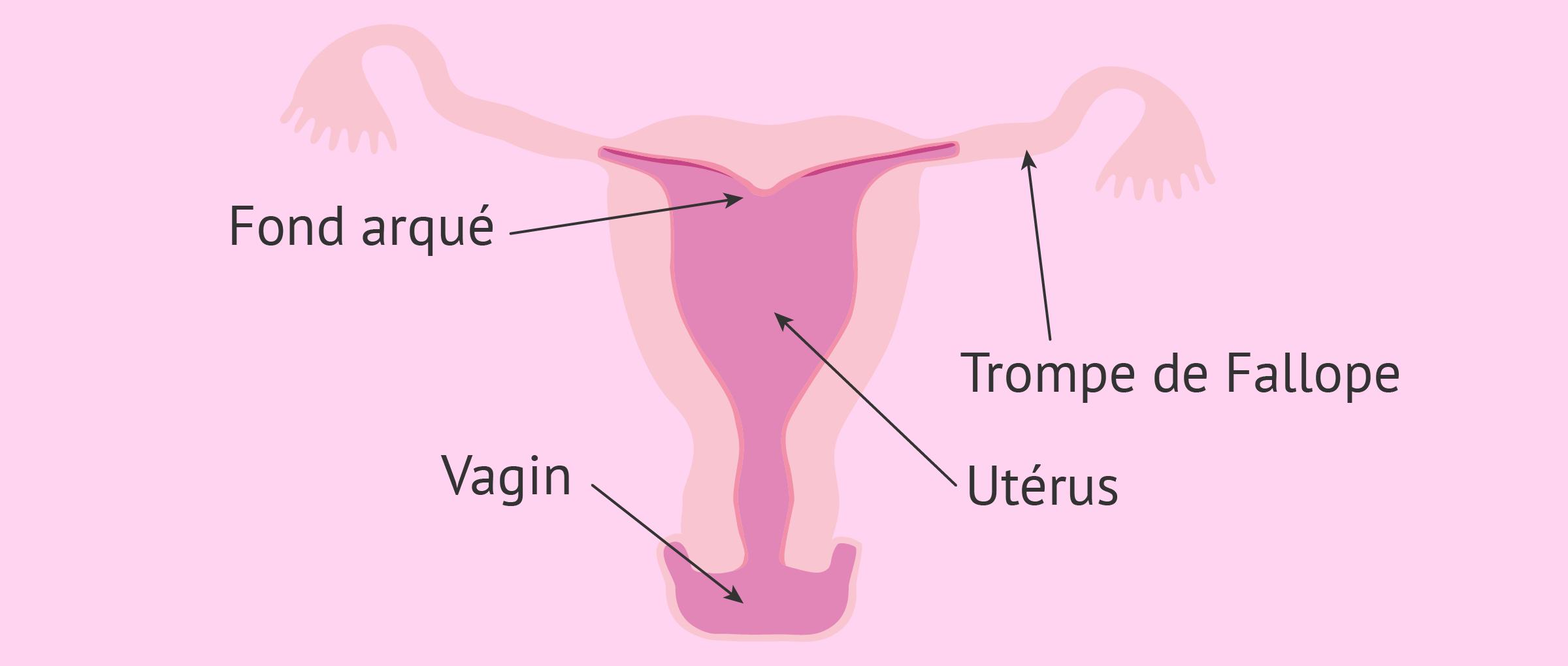 L'utérus à fond arqué