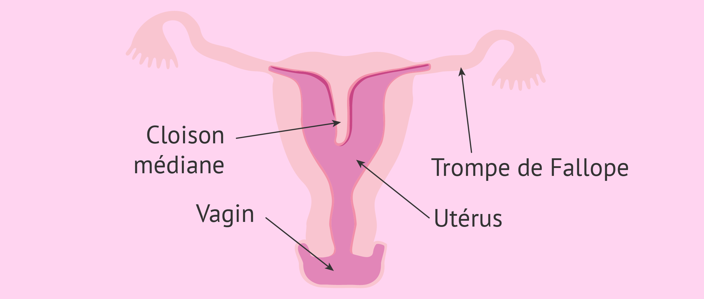 L'utérus cloisonné