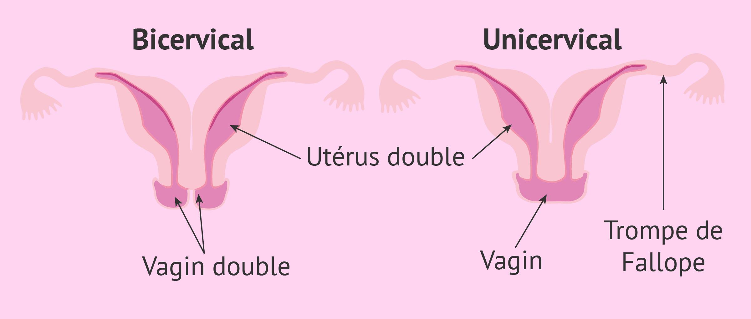 Types d'utérus didelphe