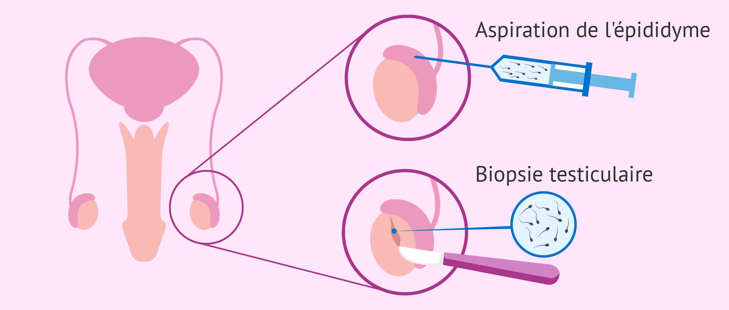 ICSI dans les cas d'infertilité masculine sévère