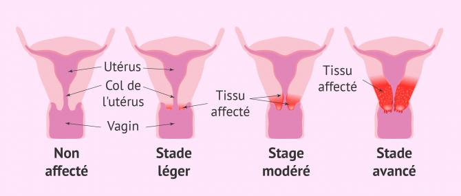 Imagen: cancer uterus