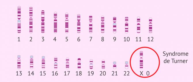 Imagen: Génétique dans le syndrome de Turner