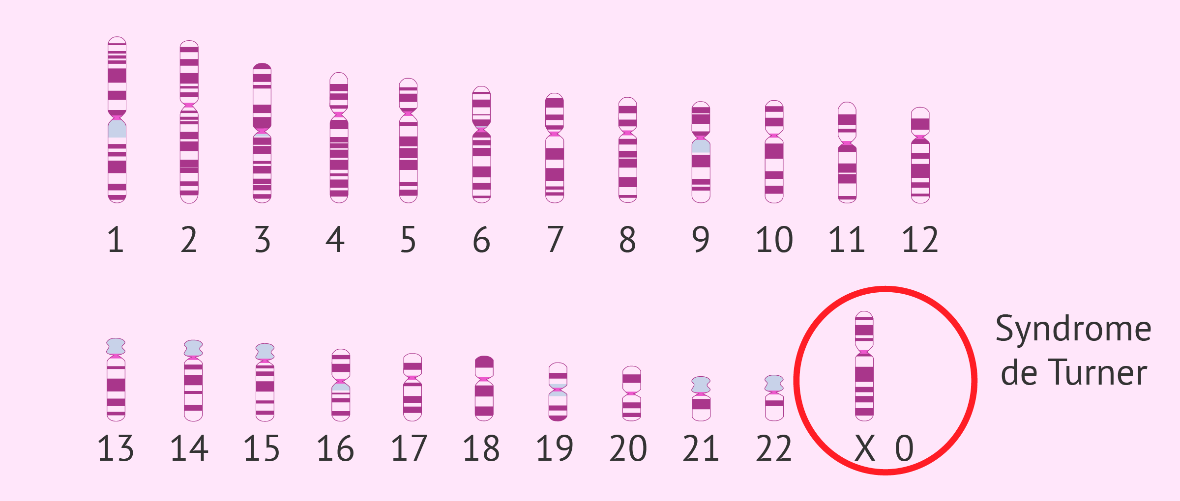 Caryotype du Syndrome de Turner