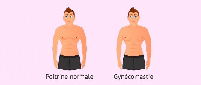 Imagen: gynécomastie