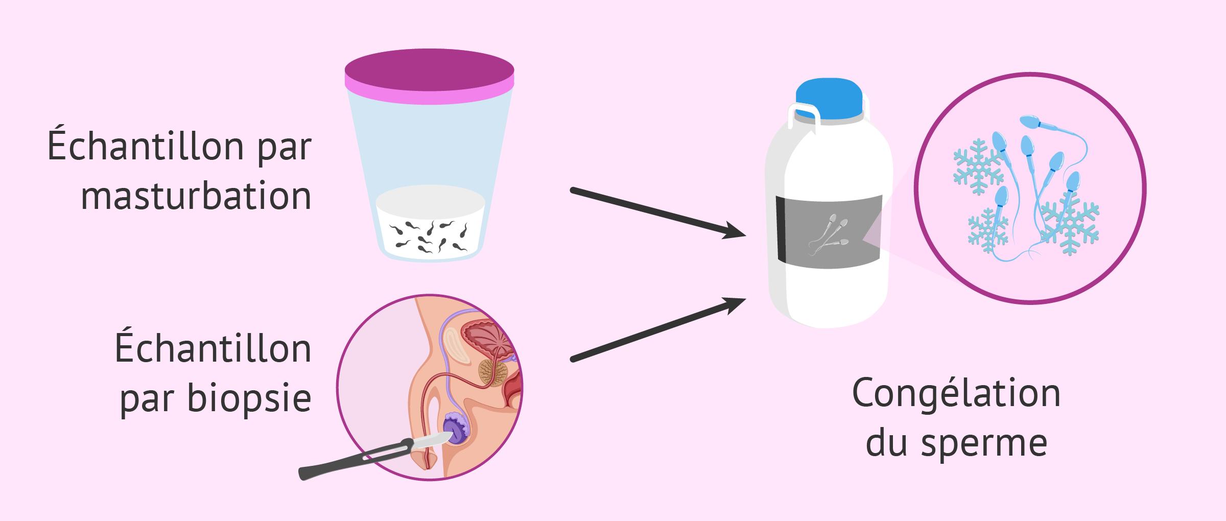 Préservation de la fertilité chez les hommes atteints de cancer