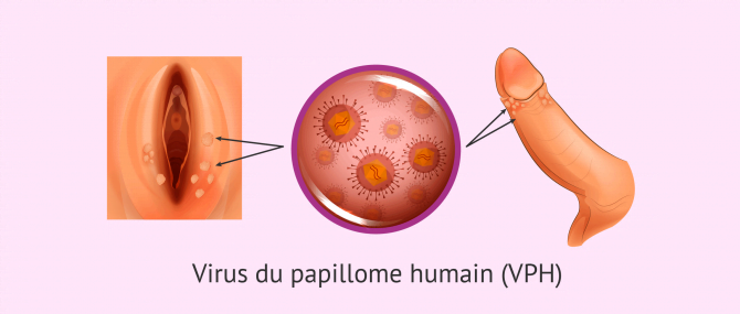 Imagen: virus du papillome humain vph