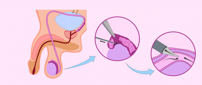 Imagen: aspiration micro-chirurgicale