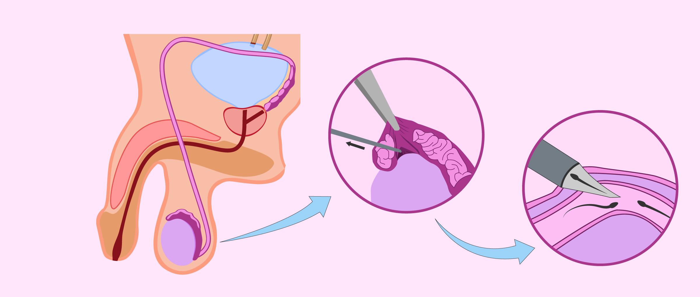 Aspiration microchirurgicale de spermatozoïdes épididymaires (MESA)