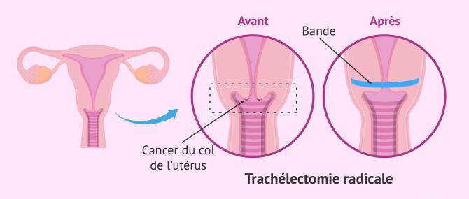 Imagen: cervicectomie