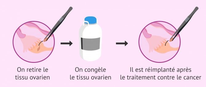 Imagen: congélation des tissus ovariens