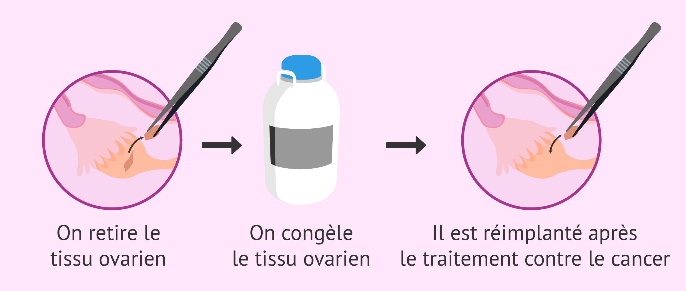 Congélation des tissus ovariens