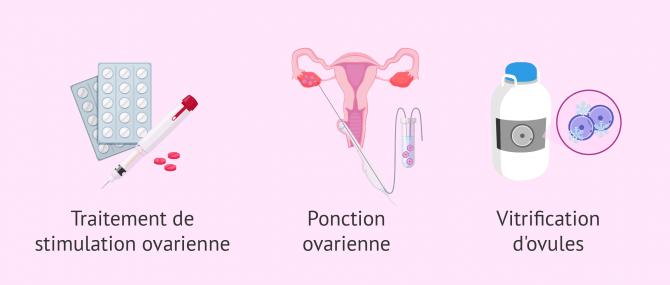 Imagen: traitements pour la vitrification des ovocytes