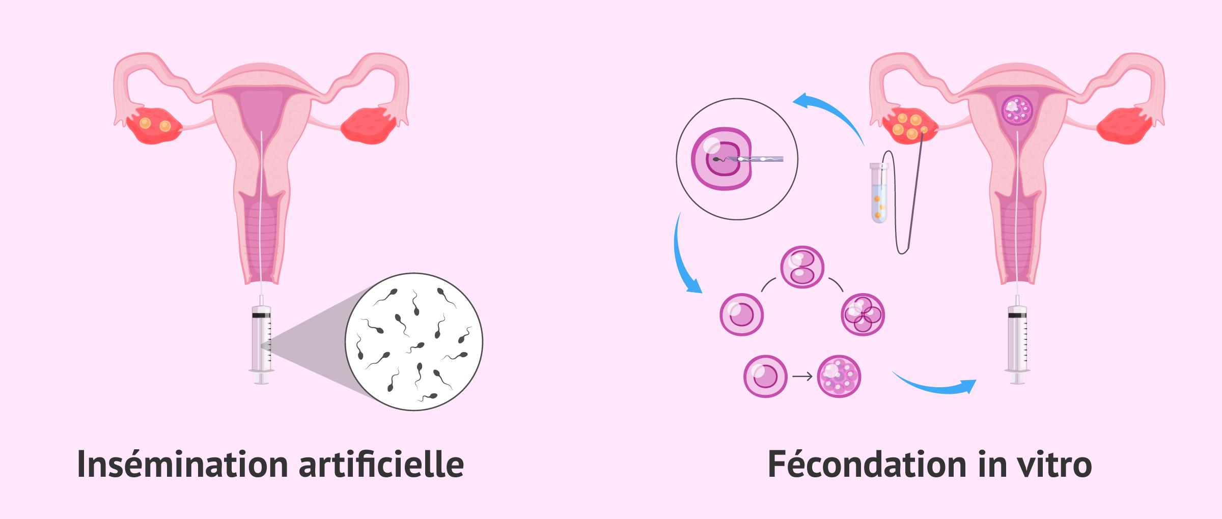 Principales techniques de procréation médicalement assistée