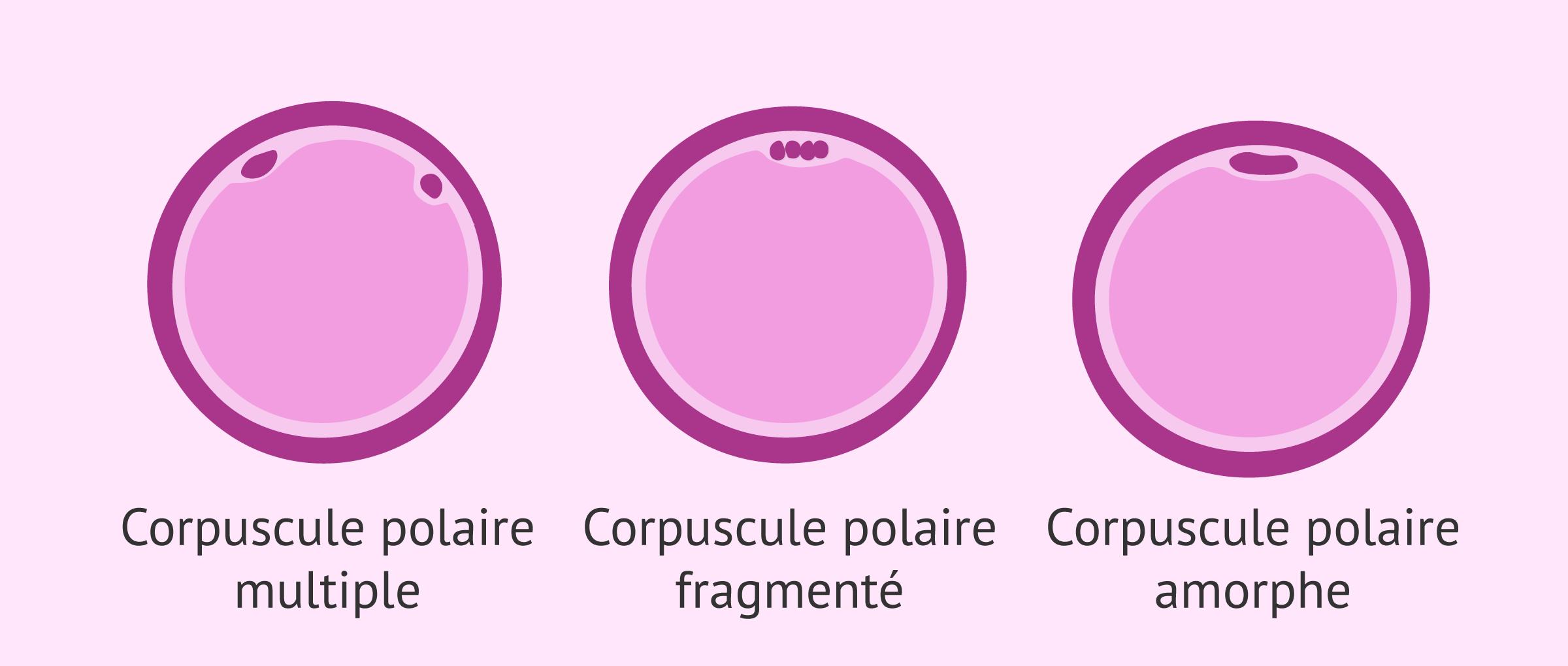 Altérations du corpuscule polaire dans les ovocytes