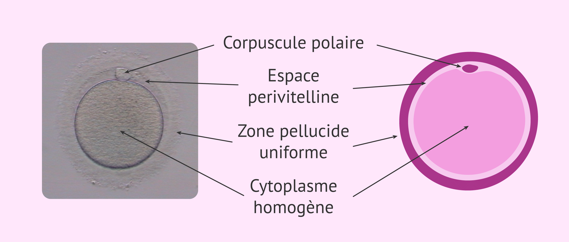 Aspect d'un ovocyte normal