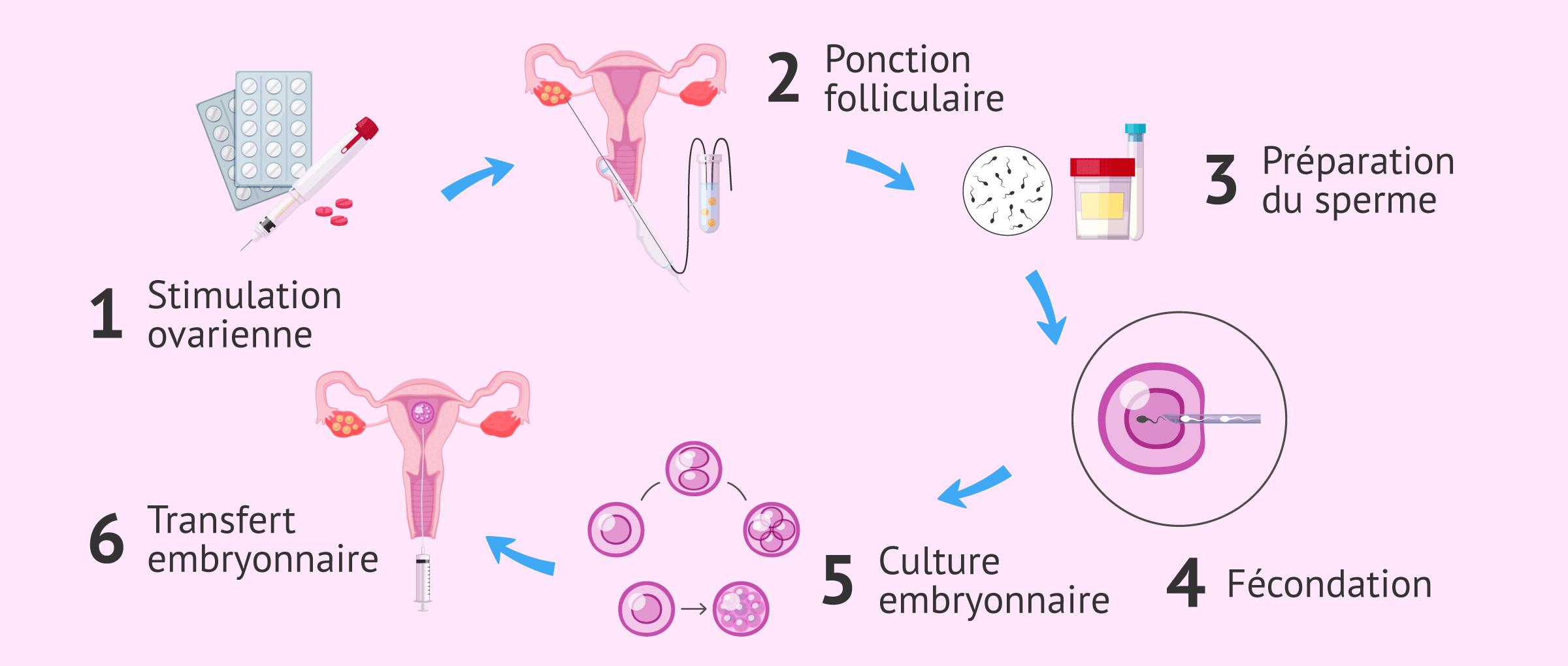 Processus de fécondation in vitro