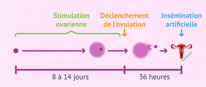 Imagen: La stimulation ovarienne lors d'une insémination artificielle