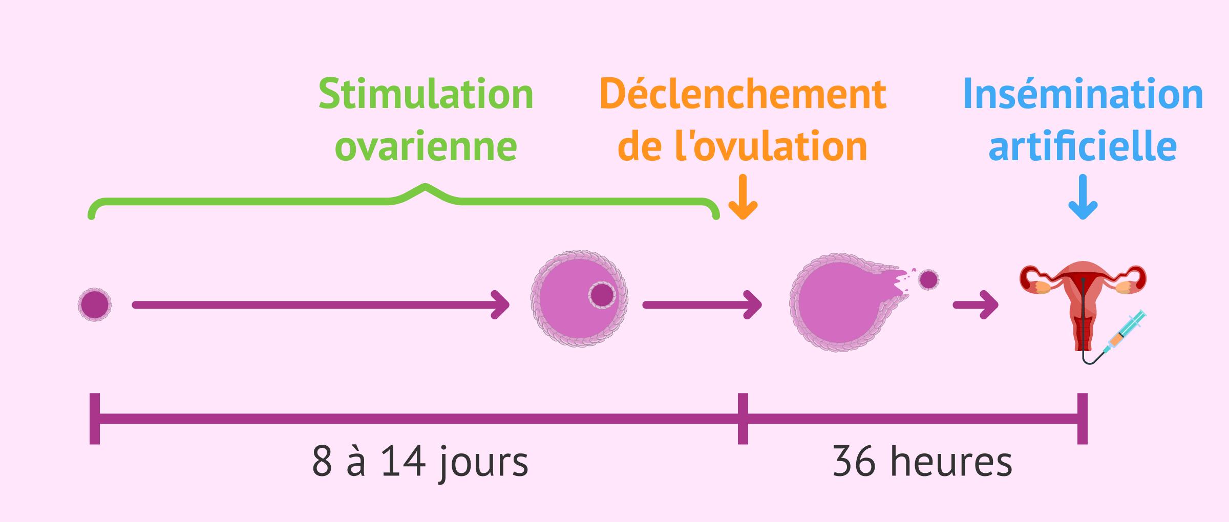 La stimulation ovarienne contrôlée dans le cadre d'une insémination artificielle