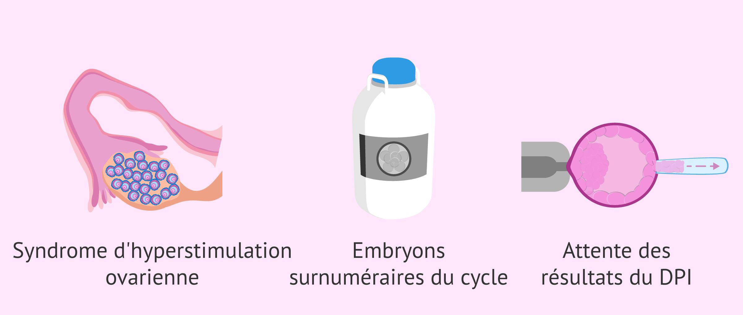 Imagen: À quel moment la vitrification d'embryons se fait-elle ?