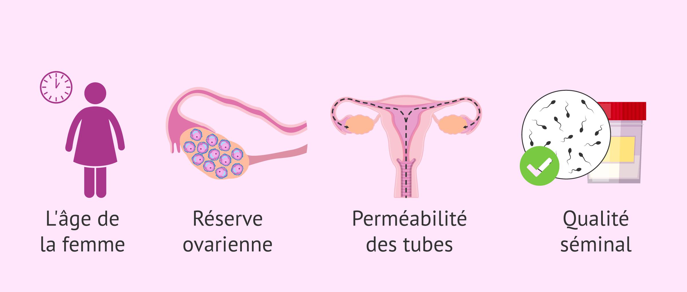Imagen: Aspects du choix du traitement reproductif