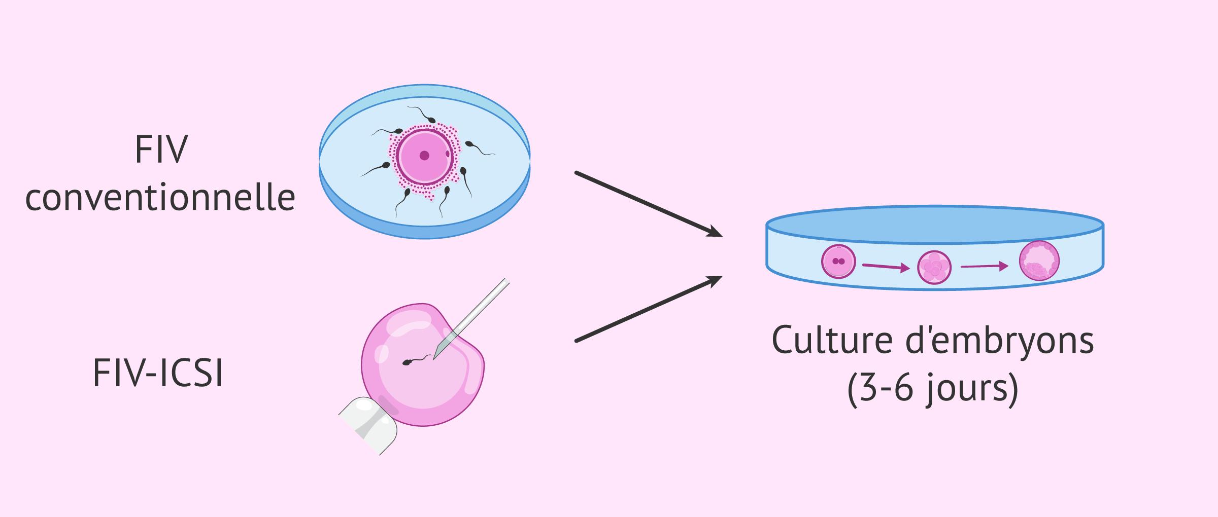 Imagen: Types de fécondation et culture d'embryons