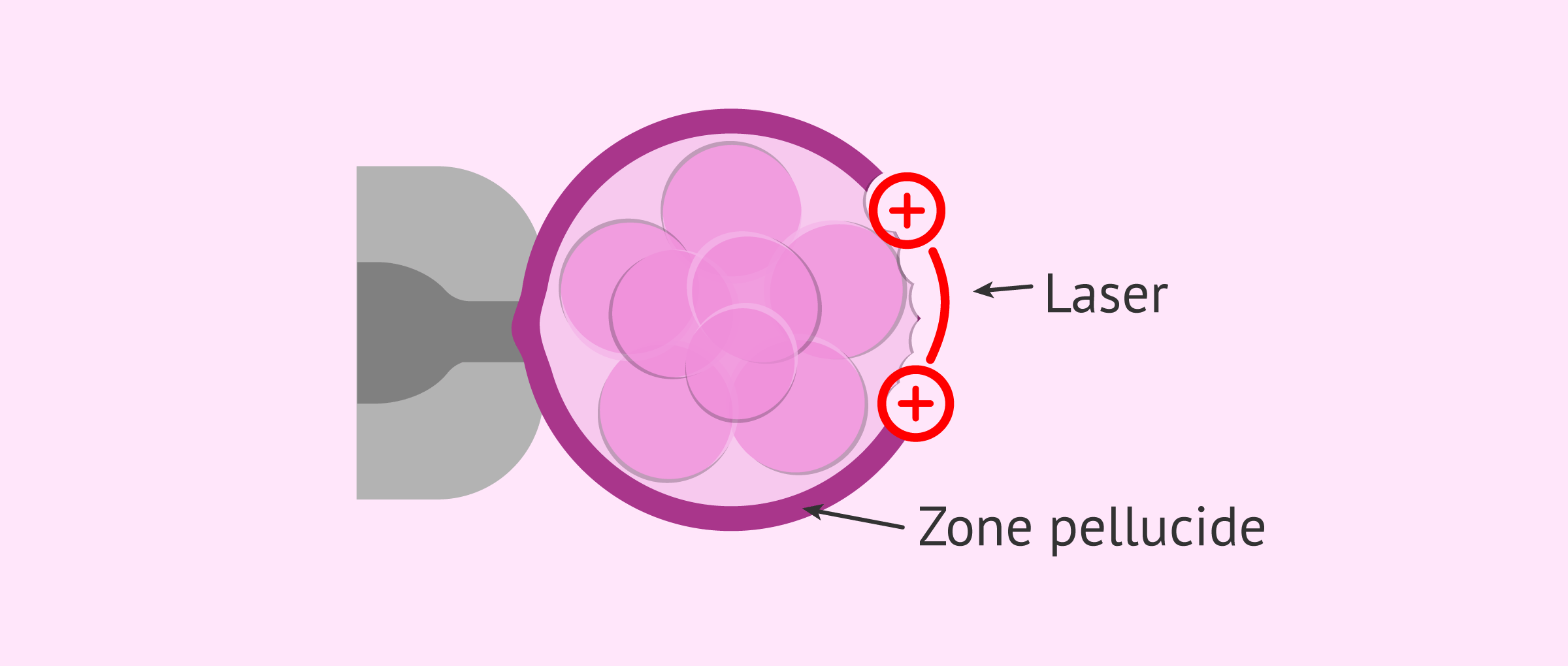 Imagen: L'éclosion assistée par laser