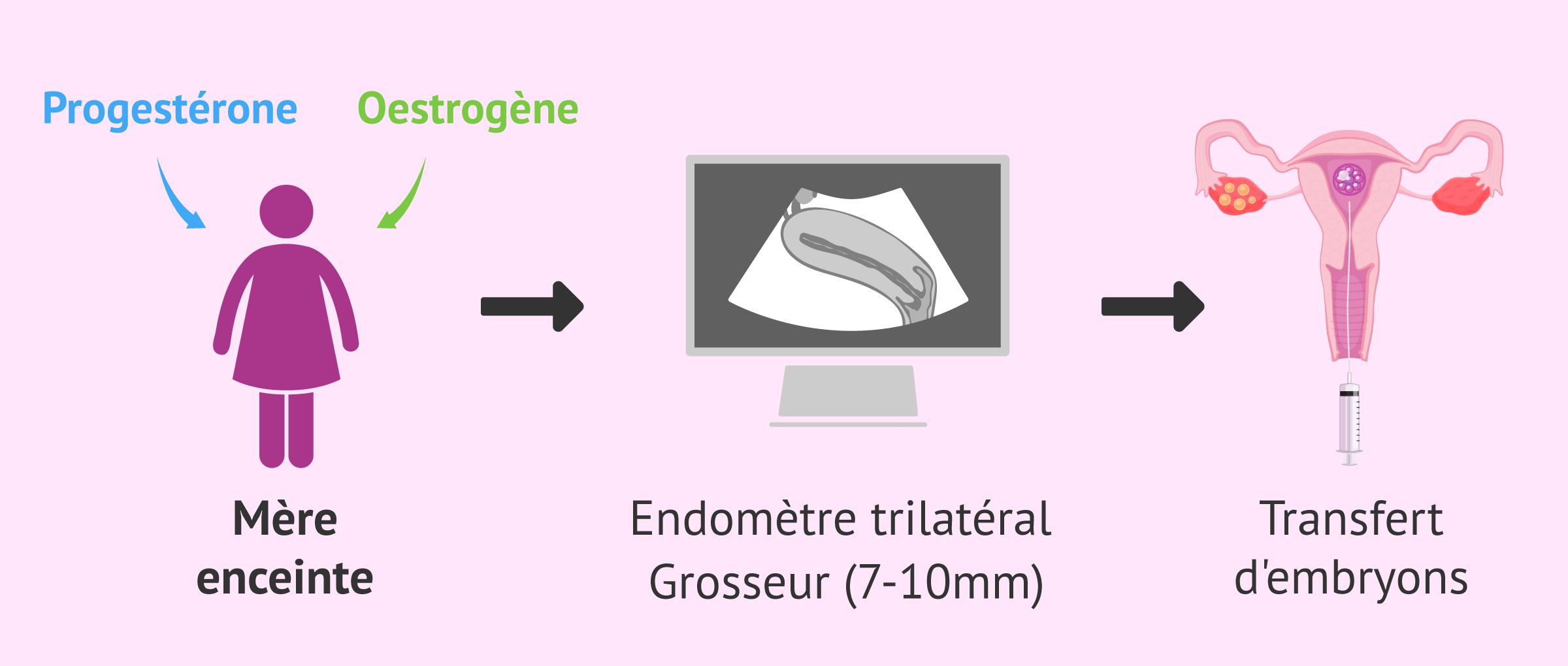 Imagen: Préparation de l'endomètre et transfert d'embryons