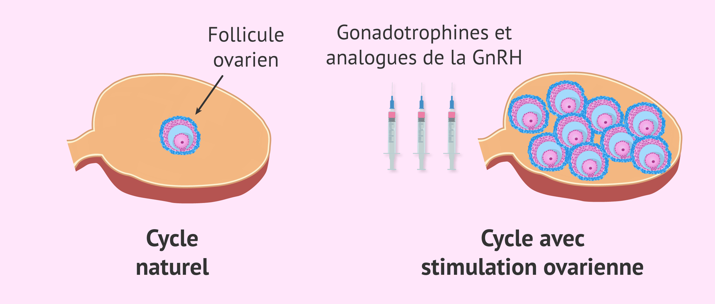Imagen: Cycle naturel et cycle avec stimulation ovarienne contrôlée