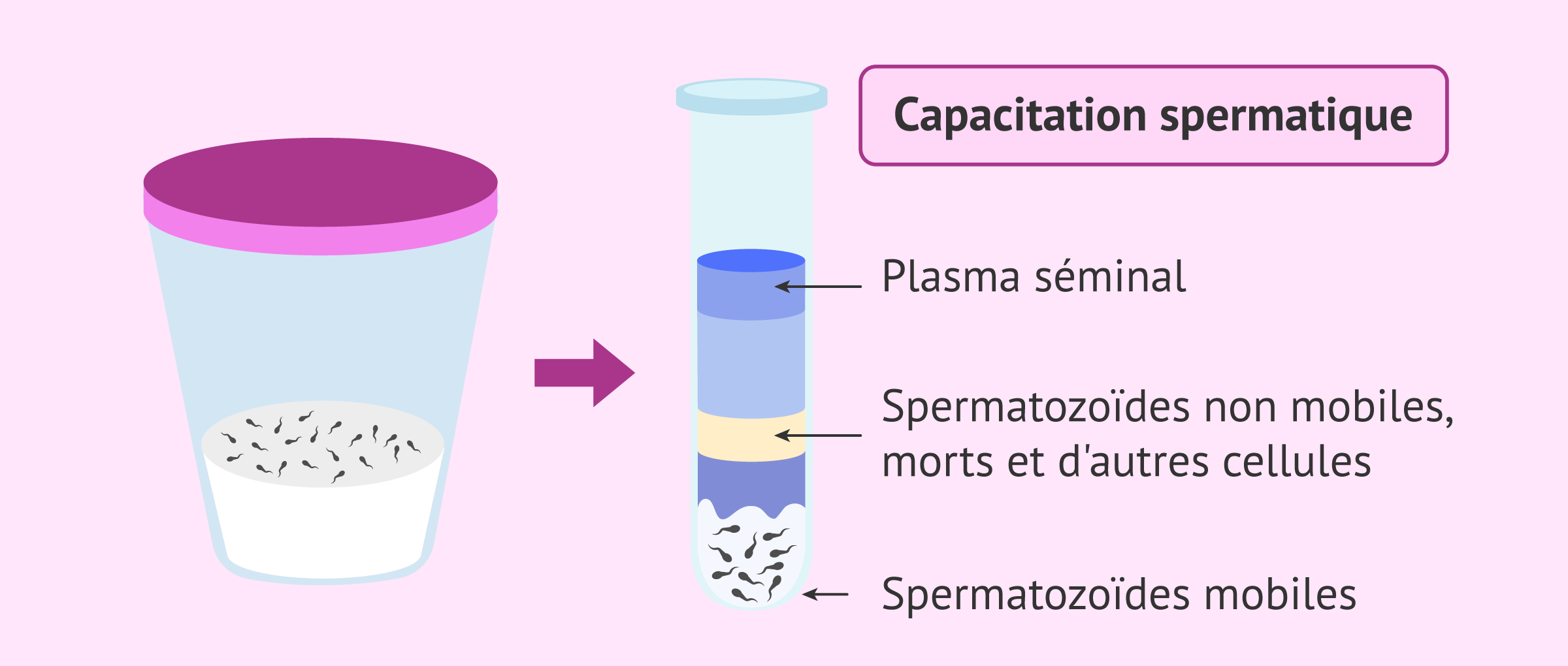 Imagen: Échantillon séminal et formation des spermatozoïdes
