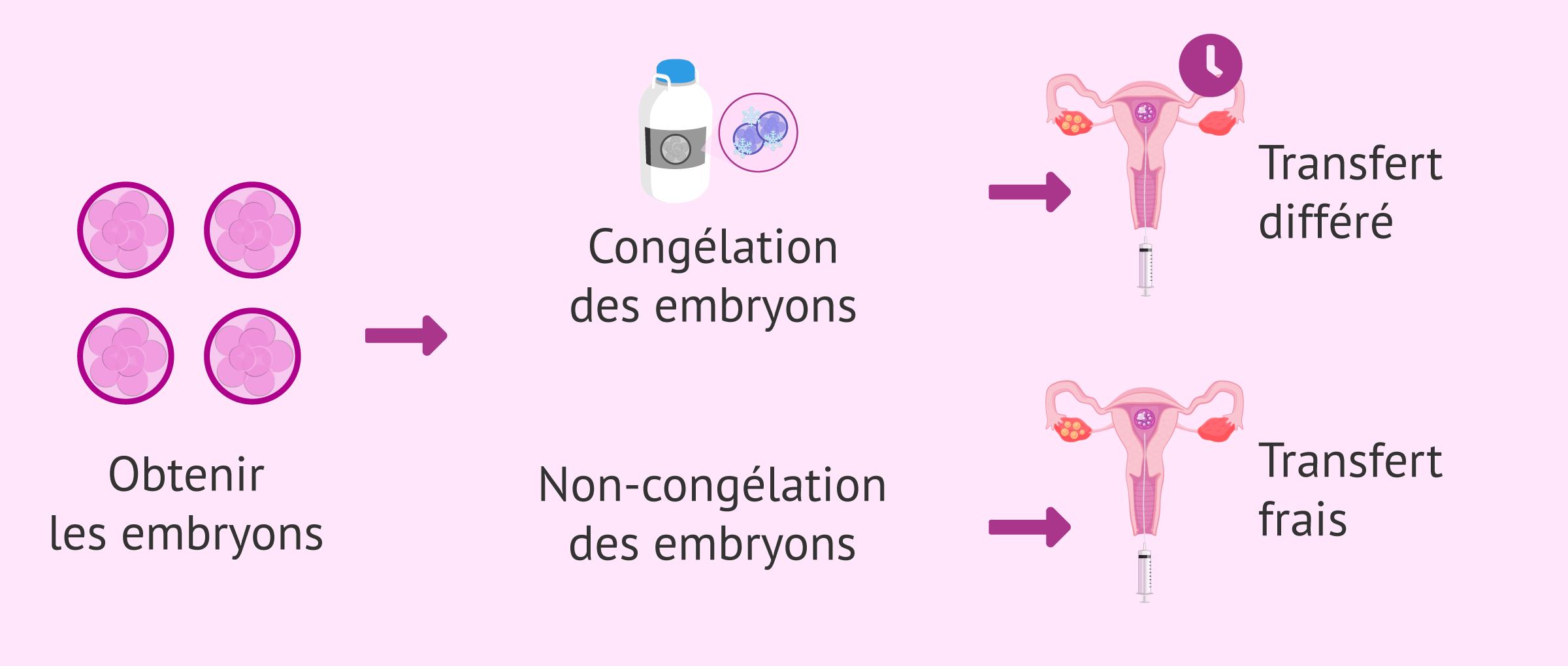 Imagen: Modèles de transfert d'embryons