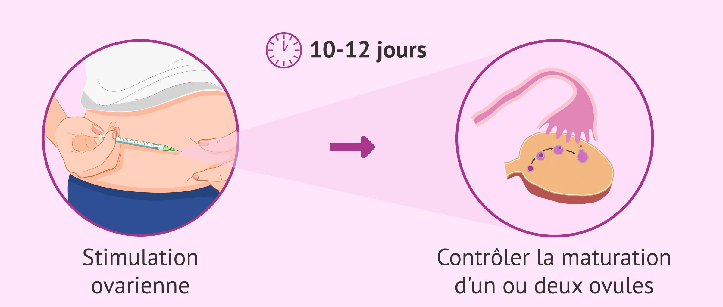 Imagen: La stimulation ovarienne pour contrôler la maturation des ovules