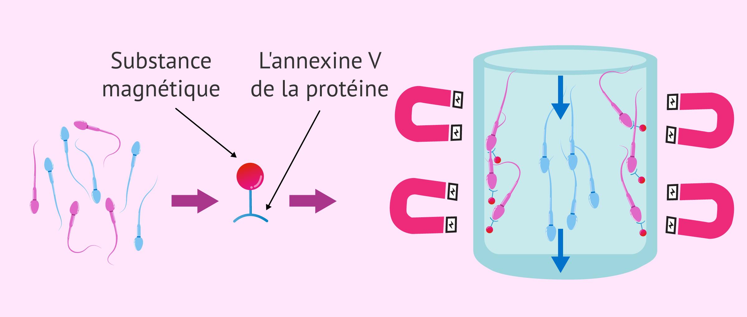 Sélection de spermatozoïdes avec colonnes d'annexine V ou MACS